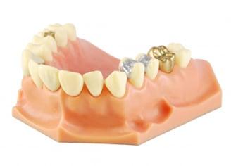 מגוון סוגי כתרים לשיניים