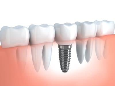 הדמיית השתלת שיניים