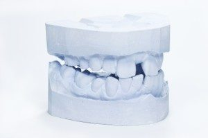 הדגמה לשיניים