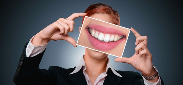 כללים לחיוך המושלם